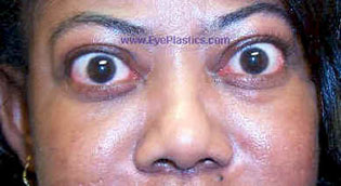 Upper Eyelid Retraction I Pre - Operative Photograph